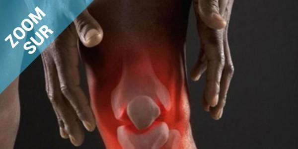Zoom sur l'arthrose du genou