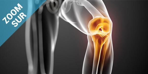 Zoom sur la tendinopathie rotulienne